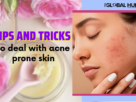 Tips and tricks to deal with acne prone skin